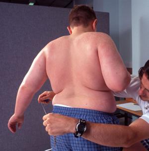 Joven obeso